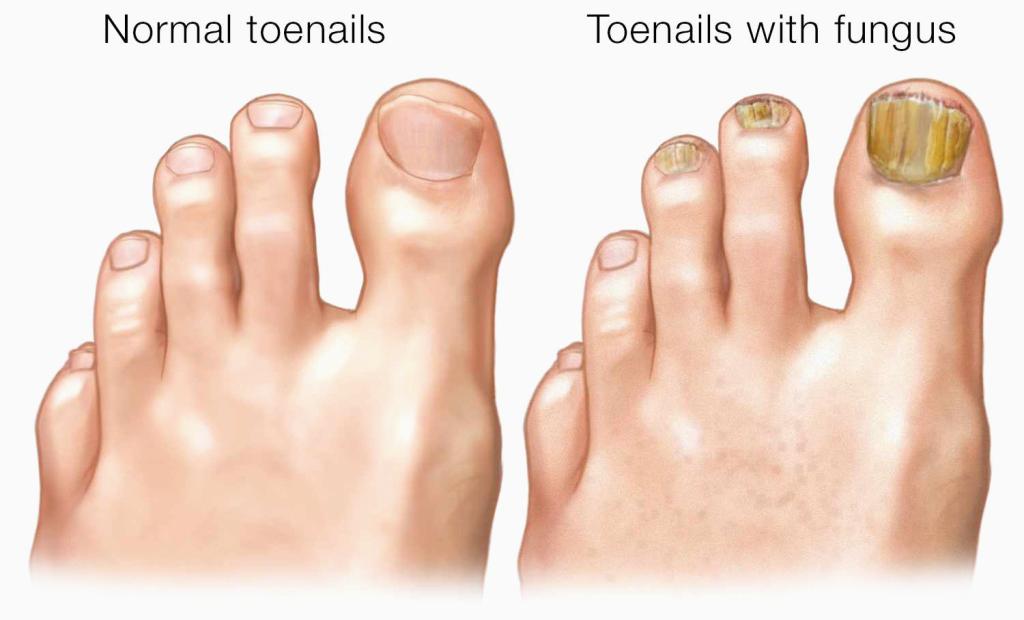 What Causes Nail Fungus? – MediNail Self Test